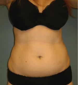 liposuction-example-before